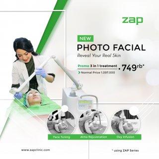 1. ZAP Clinic Photo Facial Treatment untuk Mempercantik Diri