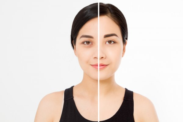 It's Not As Difficult As You Think to Get Rid of Those Goomy Circles Beneath Your Eyes: Guide on How to Get Rid of Dark Circles through Natural & Artificial Remedies (2020)