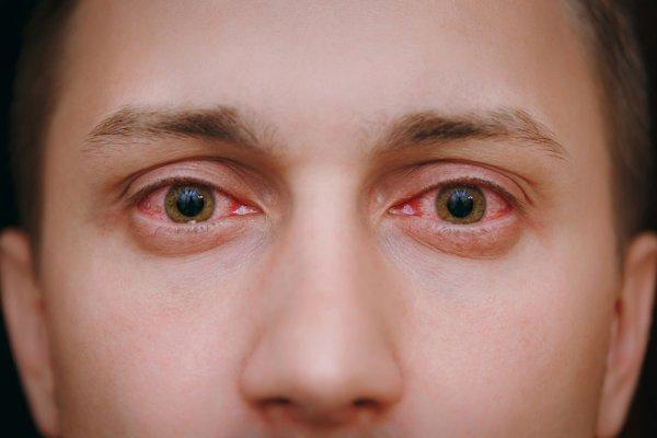 Sakit Mata? Ini Rekomendasi Obat Tetes Mata Terbaik untuk Kamu! (2020)